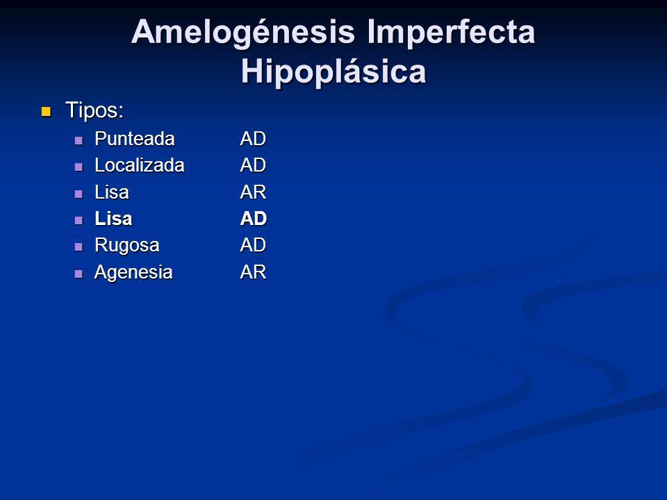 Amelogénesis Imperfecta Hipoplásica