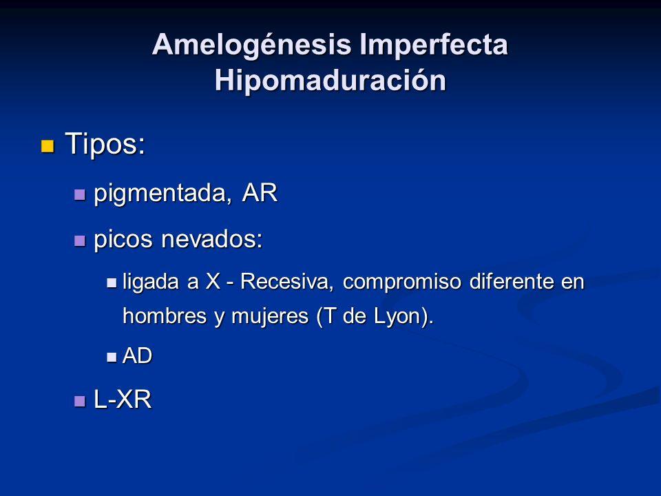 Amelogénesis Imperfecta Hipomaduración