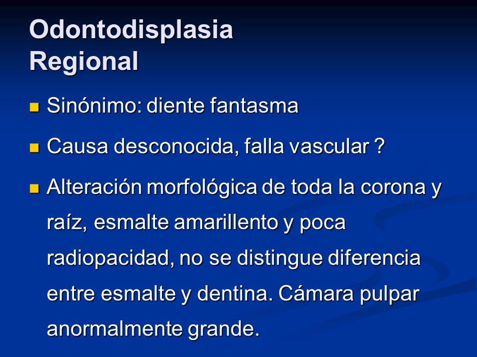 Odontodisplasia Regional