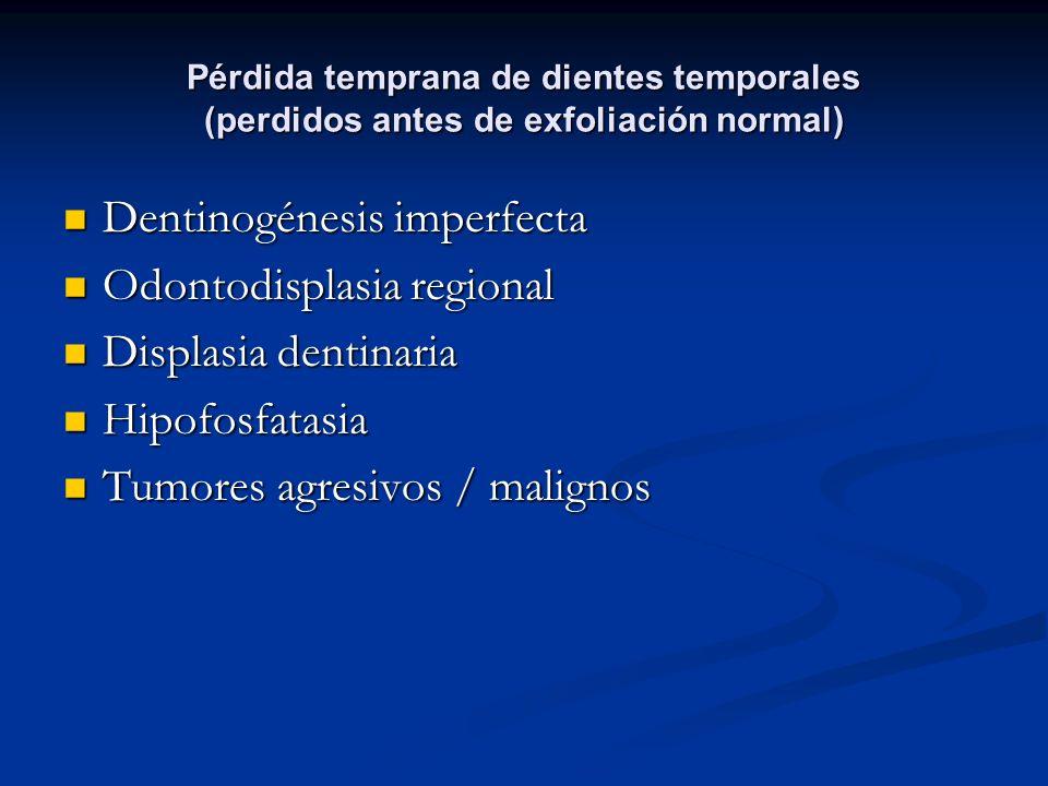 Dentinogénesis imperfecta Odontodisplasia regional