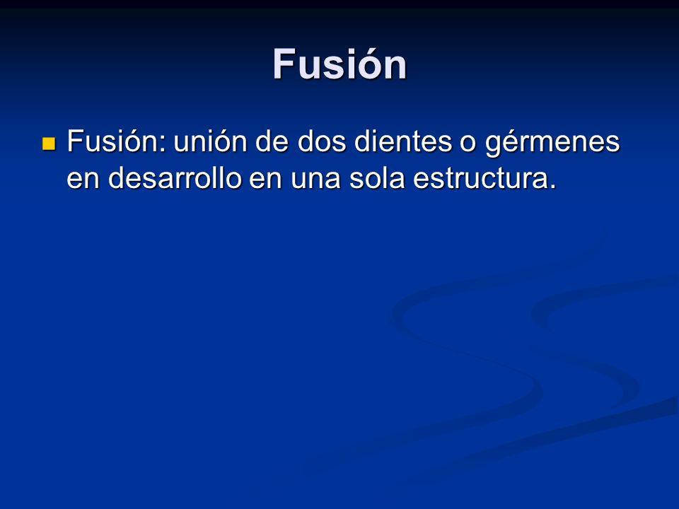 Fusión Fusión: unión de dos dientes o gérmenes en desarrollo en una sola estructura.