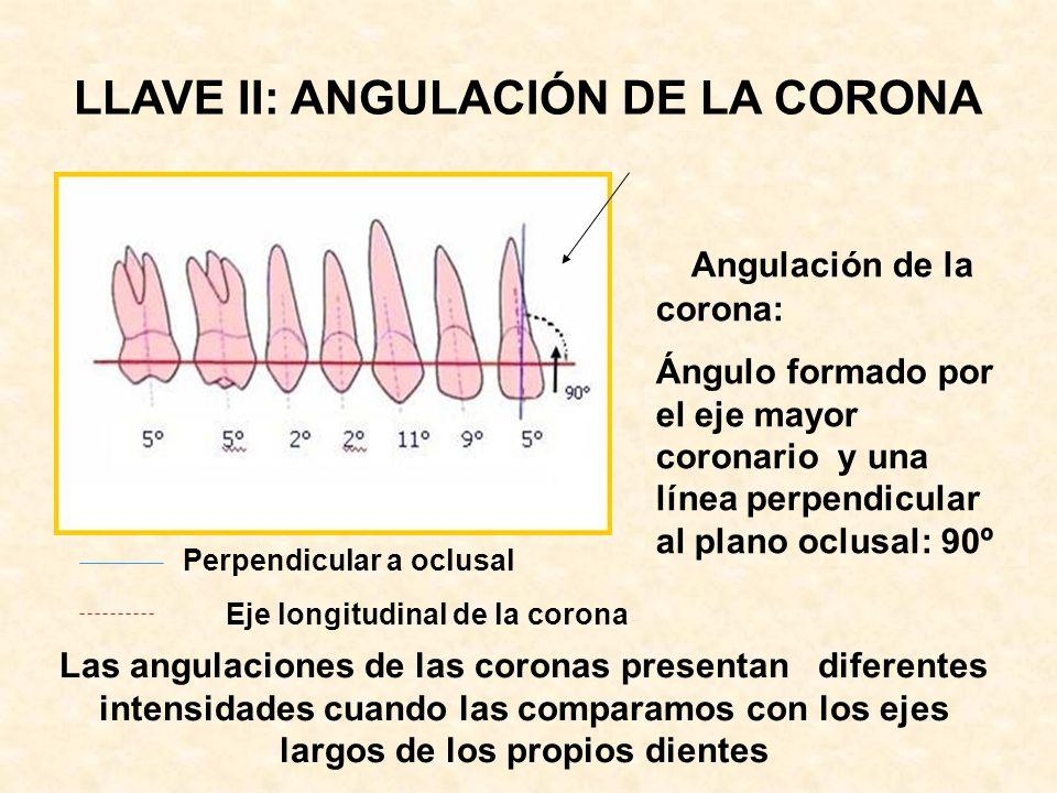 LLAVE II: ANGULACIÓN DE LA CORONA
