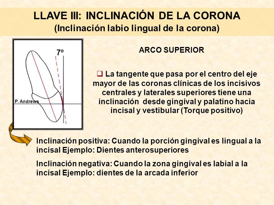 LLAVE III: INCLINACIÓN DE LA CORONA (Inclinación labio lingual de la corona)