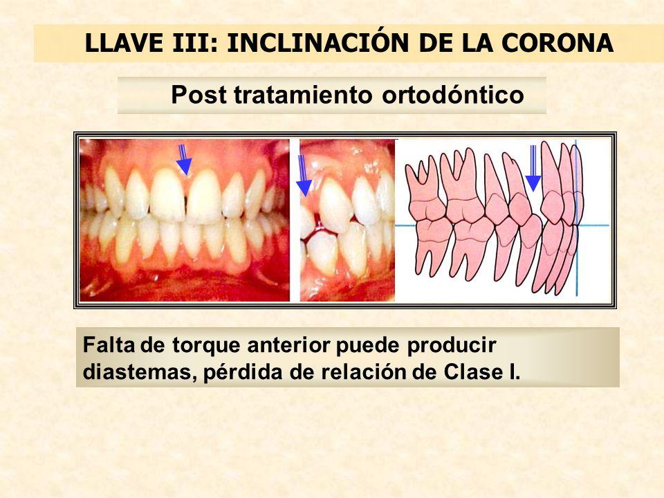 LLAVE III: INCLINACIÓN DE LA CORONA