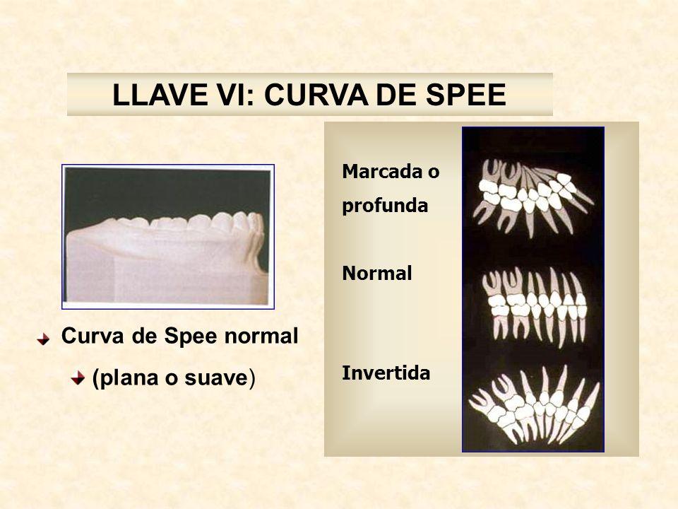 LLAVE VI: CURVA DE SPEE (plana o suave) Marcada o profunda Normal