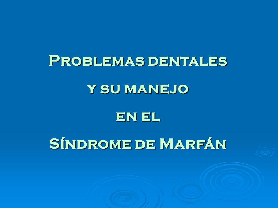 Problemas dentales y su manejo en el Síndrome de Marfán