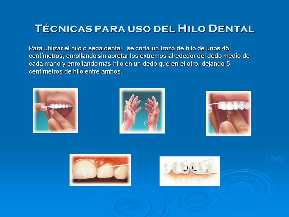 Técnicas para uso del Hilo Dental