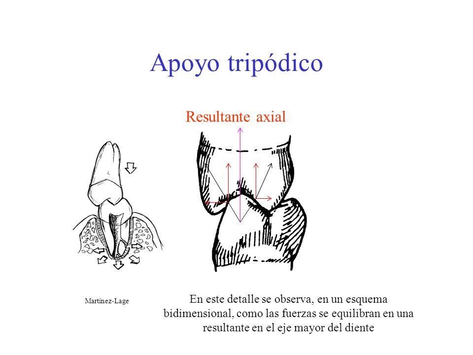 Apoyo tripódico Resultante axial