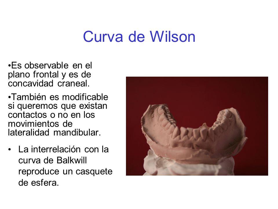 Curva de Wilson Es observable en el plano frontal y es de concavidad craneal.
