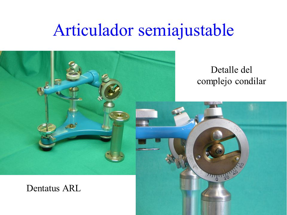 Articulador semiajustable