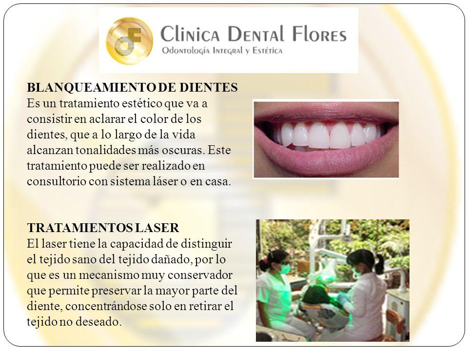 BLANQUEAMIENTO DE DIENTES Es un tratamiento estético que va a consistir en aclarar el color de los dientes, que a lo largo de la vida alcanzan tonalidades más oscuras. Este tratamiento puede ser realizado en consultorio con sistema láser o en casa.
