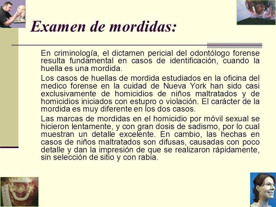 Examen de mordidas: