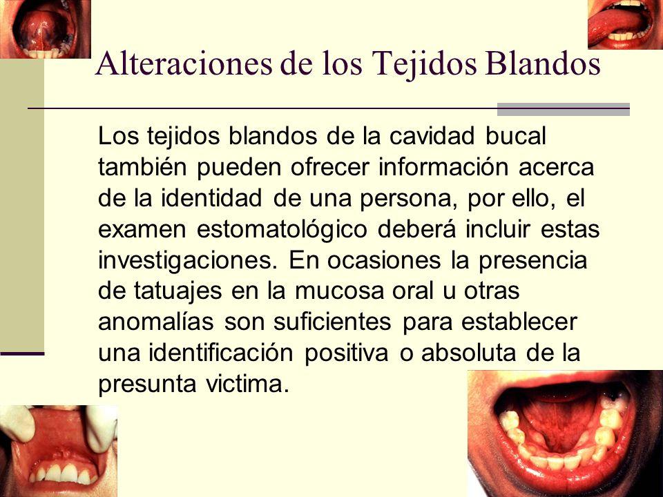 Alteraciones de los Tejidos Blandos