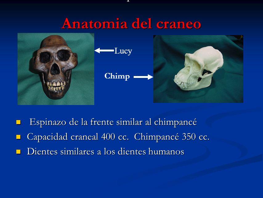 Anatomia del craneo Espinazo de la frente similar al chimpancé