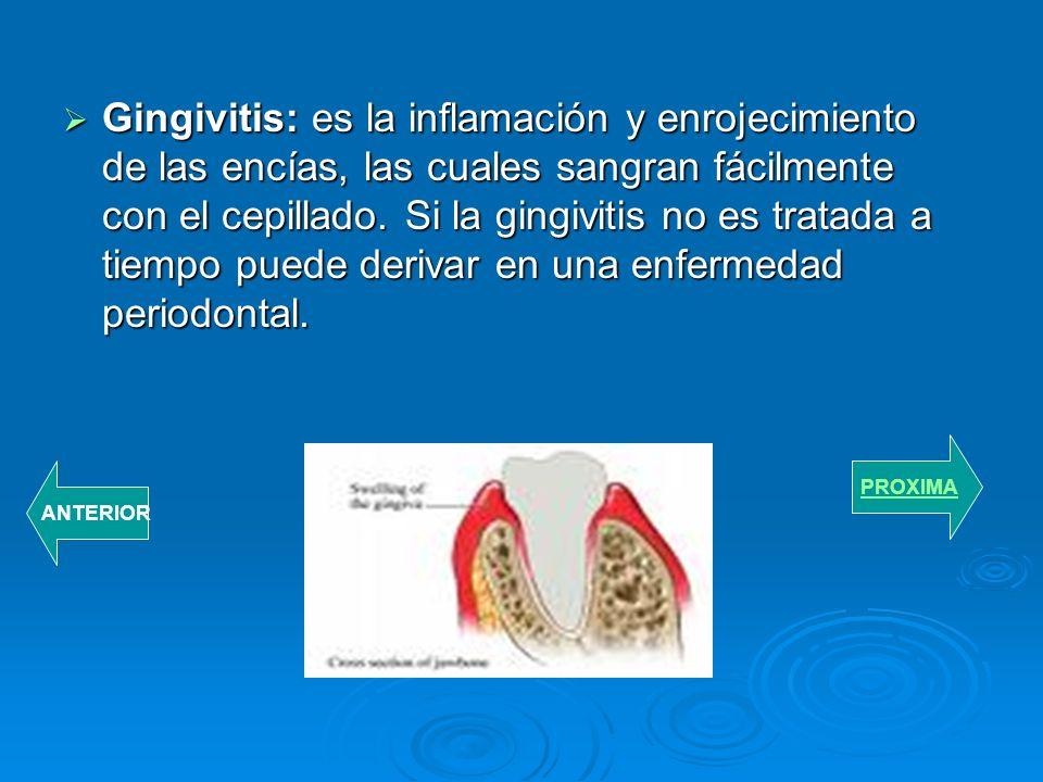 Gingivitis: es la inflamación y enrojecimiento de las encías, las cuales sangran fácilmente con el cepillado. Si la gingivitis no es tratada a tiempo puede derivar en una enfermedad periodontal.