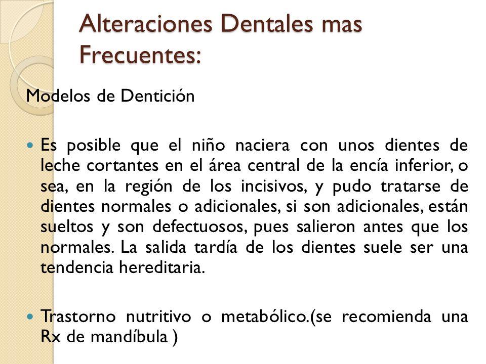 Alteraciones Dentales mas Frecuentes: