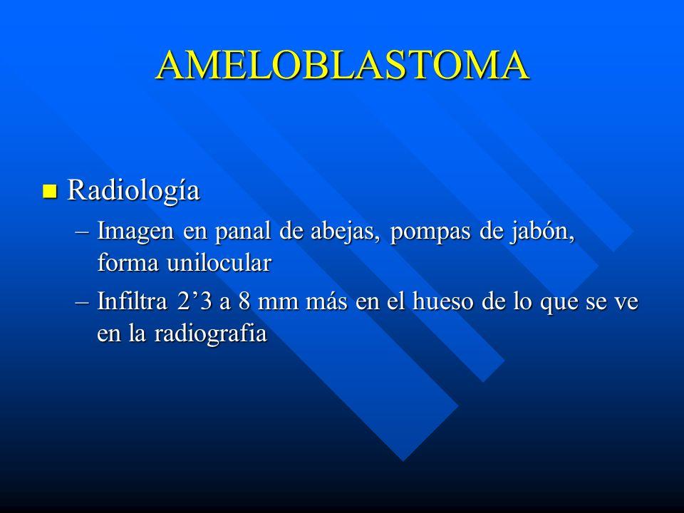 AMELOBLASTOMA Radiología