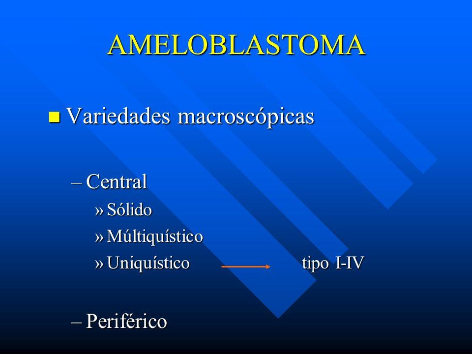 AMELOBLASTOMA Variedades macroscópicas Central Periférico Sólido