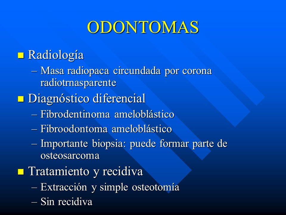 ODONTOMAS Radiología Diagnóstico diferencial Tratamiento y recidiva