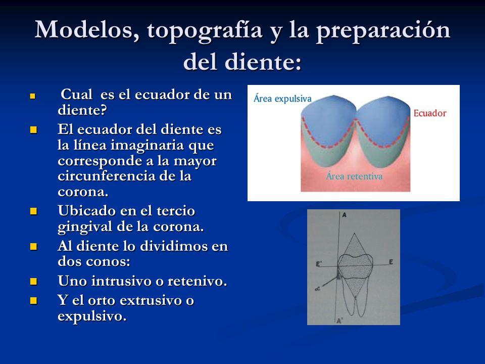 Modelos, topografía y la preparación del diente: