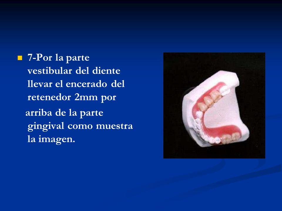 7-Por la parte vestibular del diente llevar el encerado del retenedor 2mm por