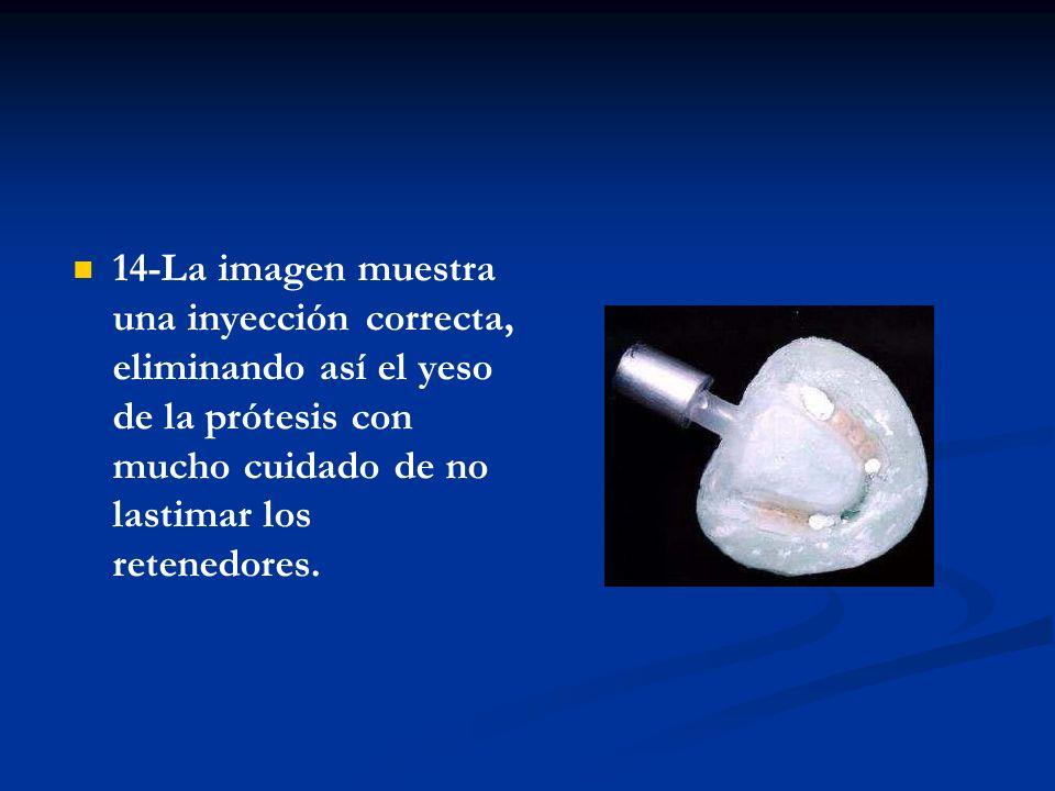 14-La imagen muestra una inyección correcta, eliminando así el yeso de la prótesis con mucho cuidado de no lastimar los retenedores.