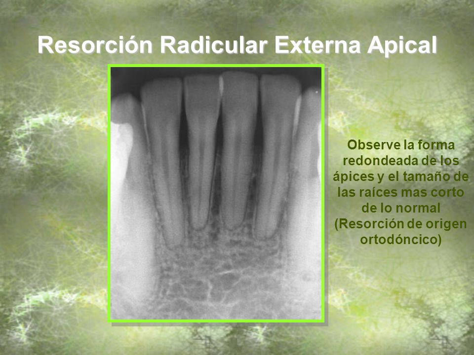 Resorción Radicular Externa Apical