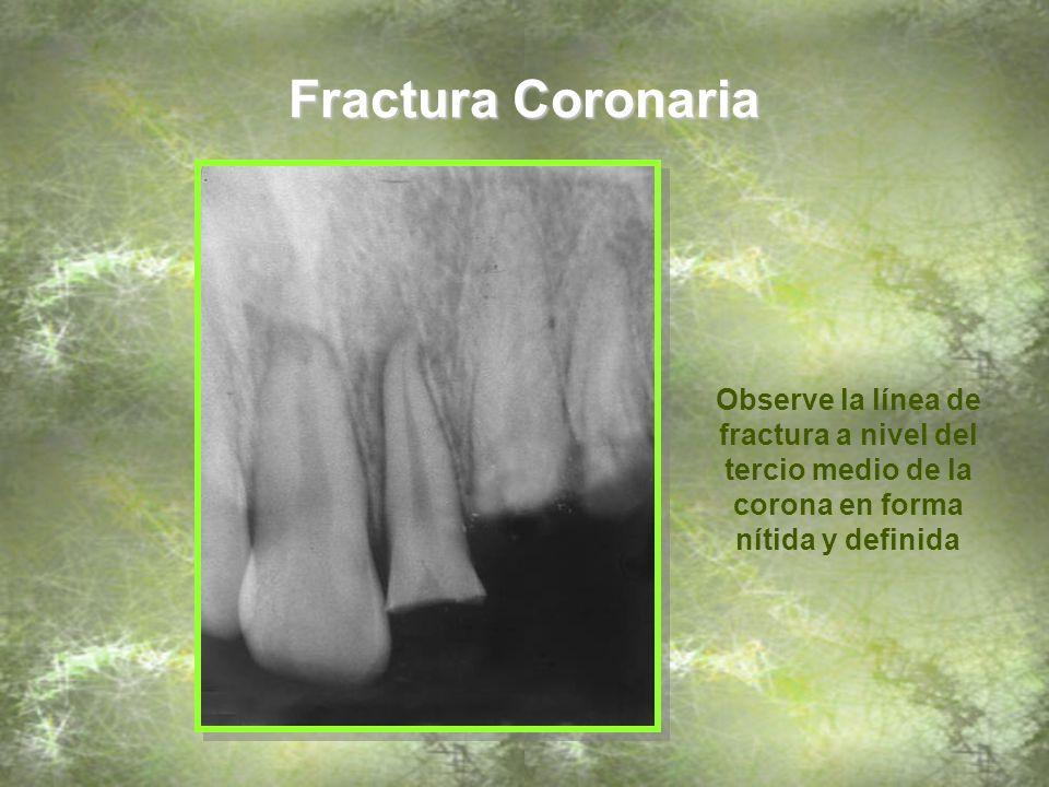 Fractura Coronaria Observe la línea de fractura a nivel del tercio medio de la corona en forma nítida y definida.