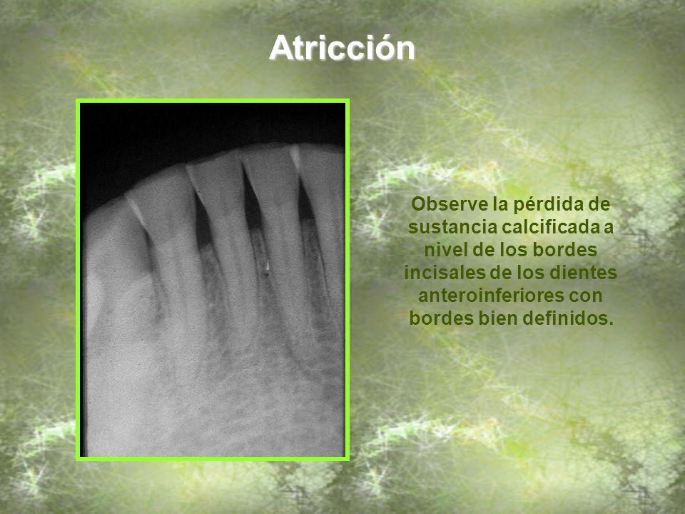 Atricción Observe la pérdida de sustancia calcificada a nivel de los bordes incisales de los dientes anteroinferiores con bordes bien definidos.