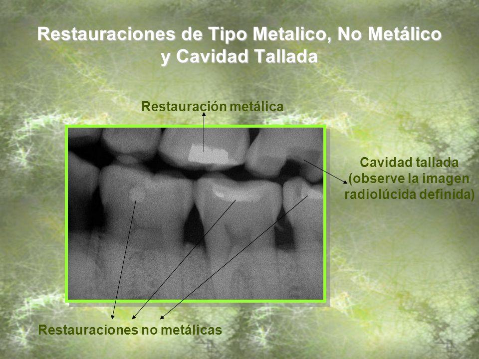 Restauraciones de Tipo Metalico, No Metálico y Cavidad Tallada