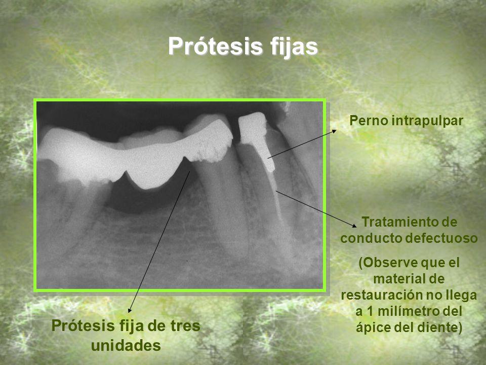 Tratamiento de conducto defectuoso Prótesis fija de tres unidades