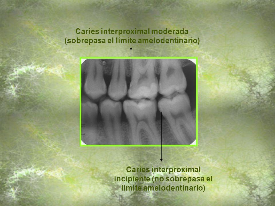 Caries interproximal moderada (sobrepasa el límite amelodentinario)