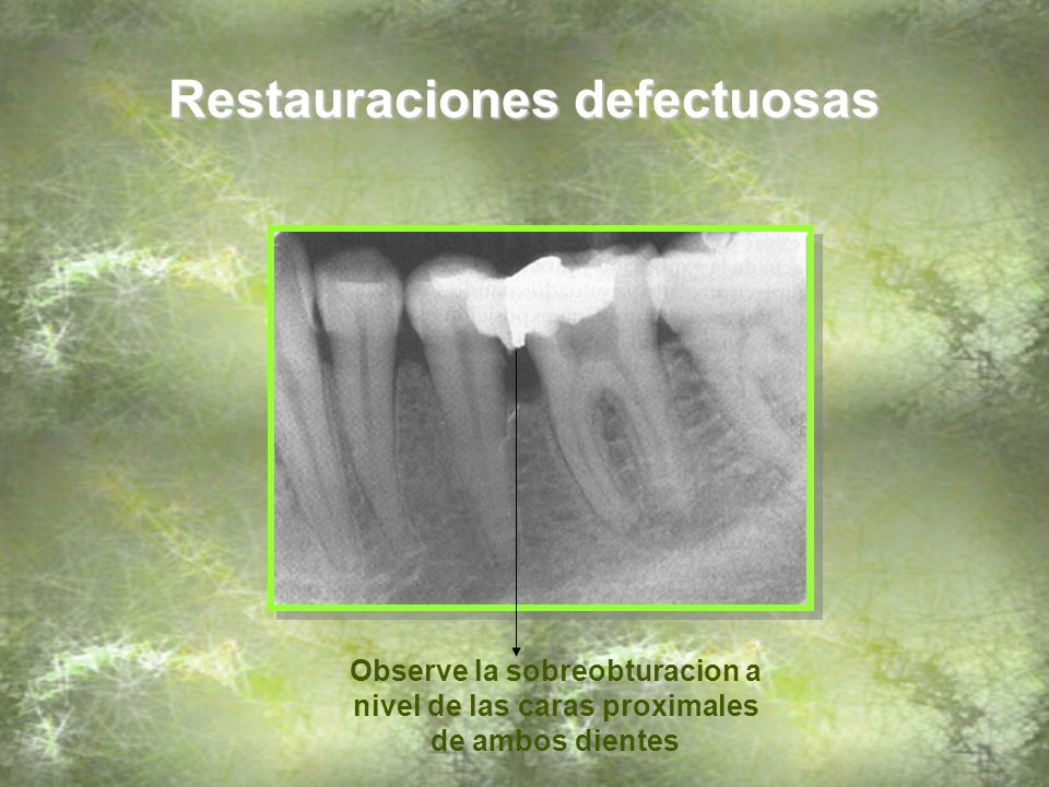 Restauraciones defectuosas