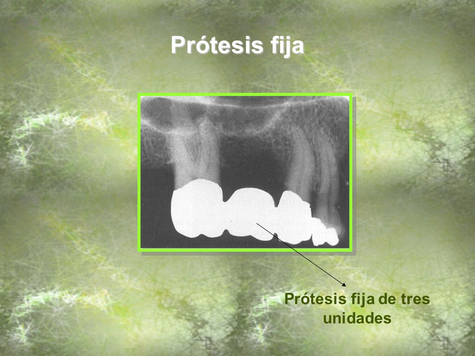 Prótesis fija de tres unidades