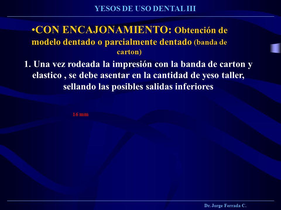 Dr. Jorge Ferrada C. YESOS DE USO DENTAL III. CON ENCAJONAMIENTO: Obtención de modelo dentado o parcialmente dentado (banda de carton)