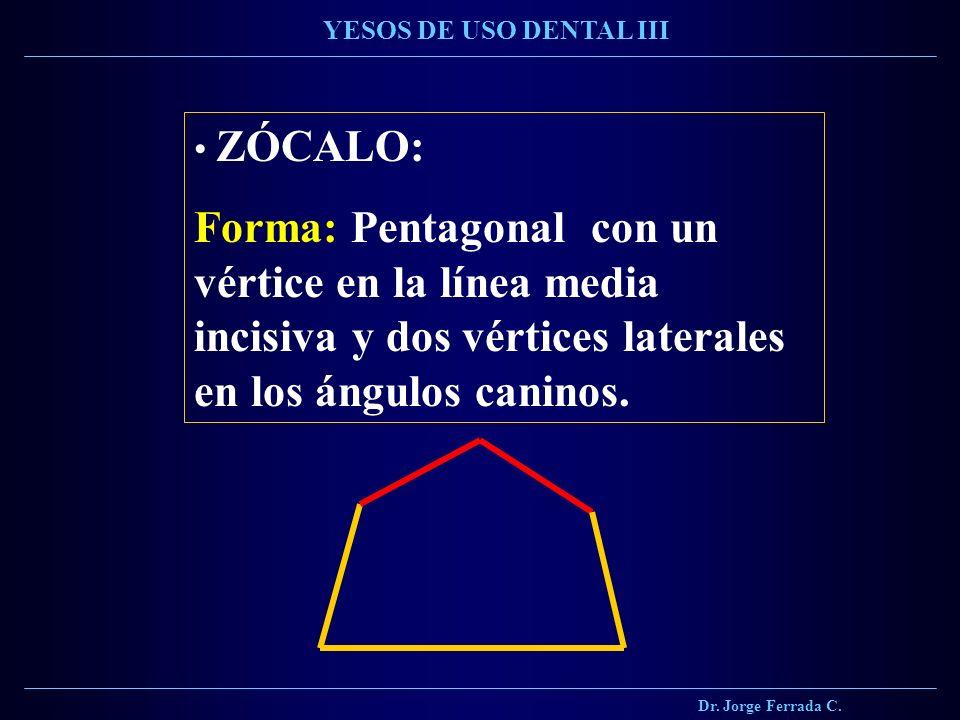 Dr. Jorge Ferrada C. YESOS DE USO DENTAL III. ZÓCALO: