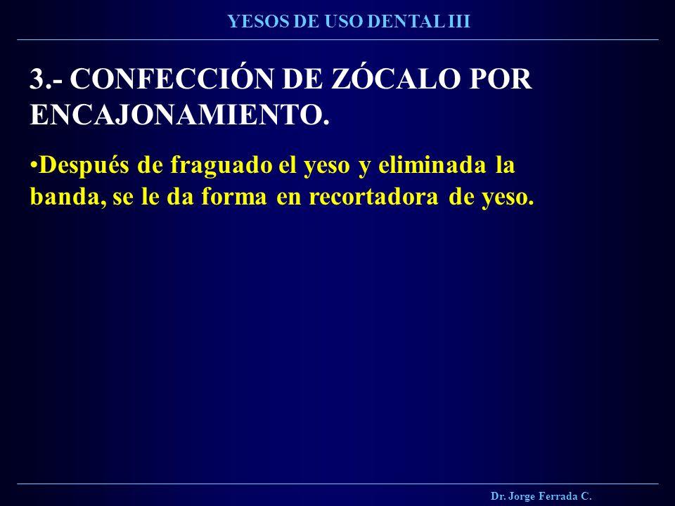 3.- CONFECCIÓN DE ZÓCALO POR ENCAJONAMIENTO.