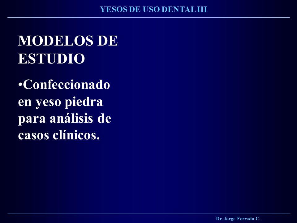Dr. Jorge Ferrada C. YESOS DE USO DENTAL III. MODELOS DE ESTUDIO.