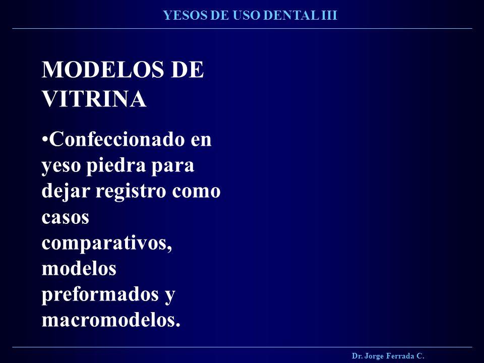 Dr. Jorge Ferrada C. YESOS DE USO DENTAL III. MODELOS DE VITRINA.