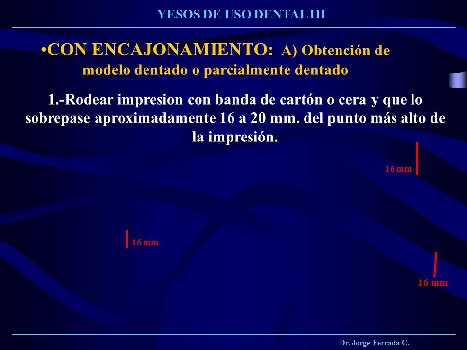 Dr. Jorge Ferrada C. YESOS DE USO DENTAL III. CON ENCAJONAMIENTO: A) Obtención de modelo dentado o parcialmente dentado.