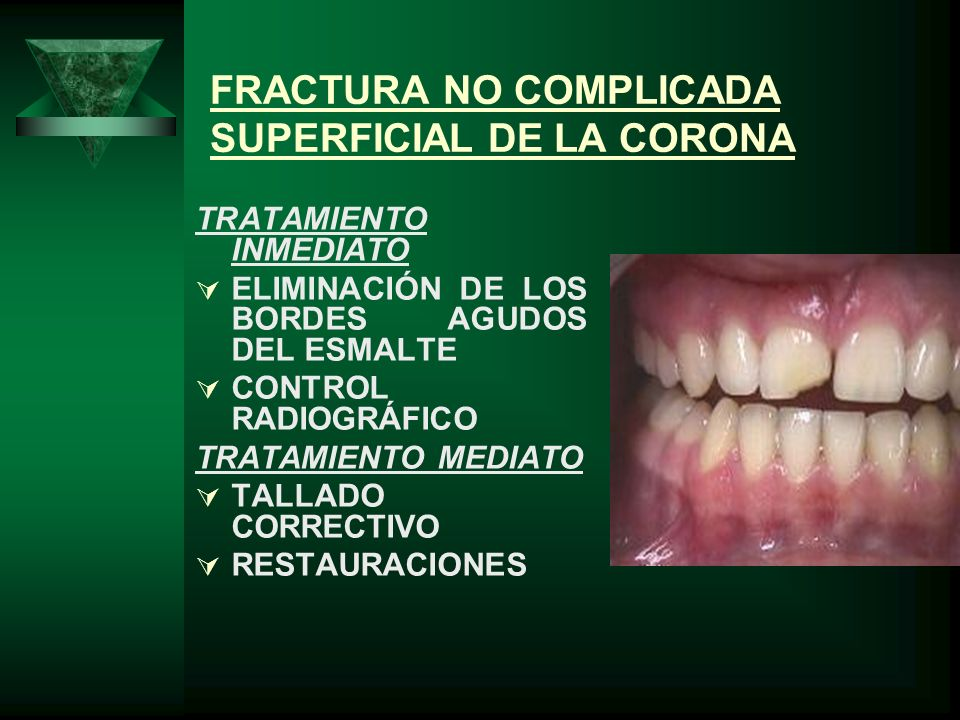 FRACTURA NO COMPLICADA SUPERFICIAL DE LA CORONA