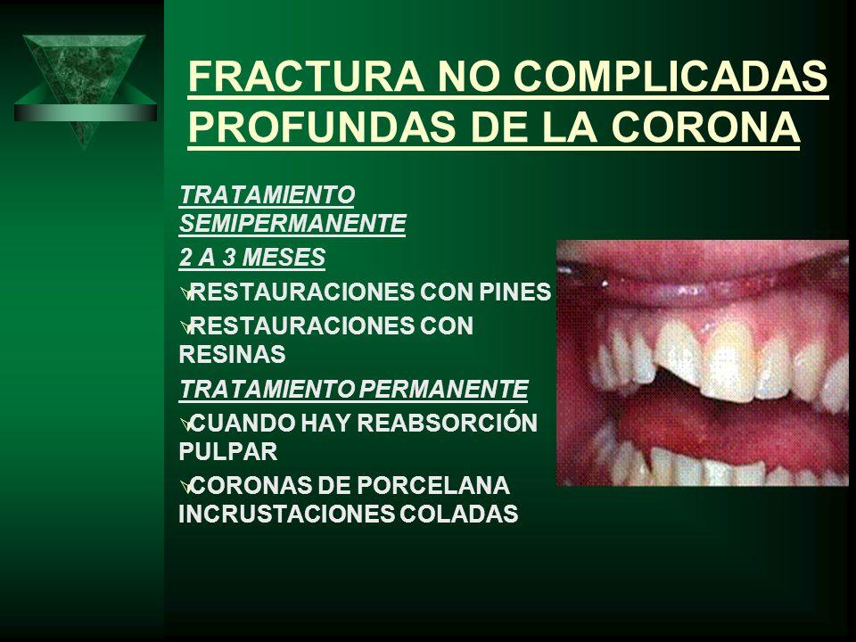 FRACTURA NO COMPLICADAS PROFUNDAS DE LA CORONA