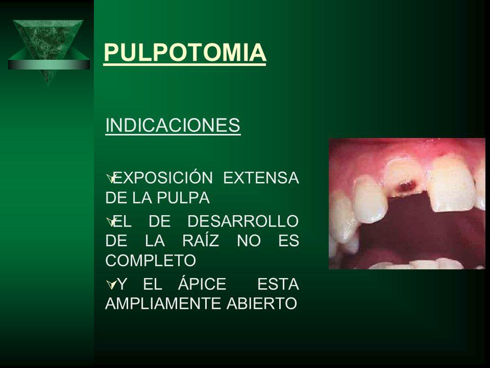PULPOTOMIA INDICACIONES EXPOSICIÓN EXTENSA DE LA PULPA