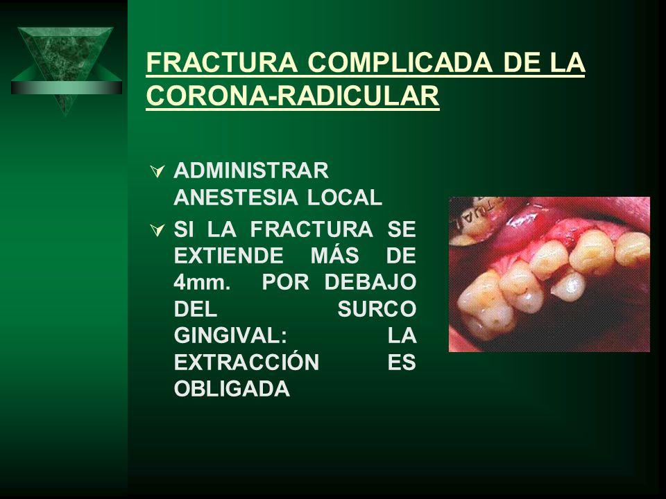 FRACTURA COMPLICADA DE LA CORONA-RADICULAR