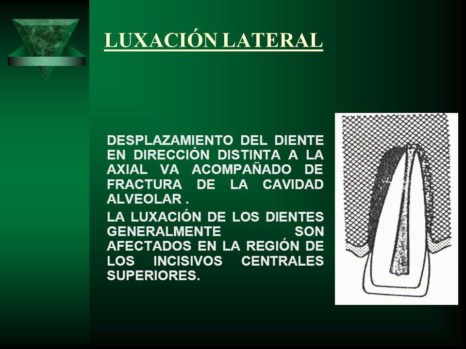 LUXACIÓN LATERAL DESPLAZAMIENTO DEL DIENTE EN DIRECCIÓN DISTINTA A LA AXIAL VA ACOMPAÑADO DE FRACTURA DE LA CAVIDAD ALVEOLAR .