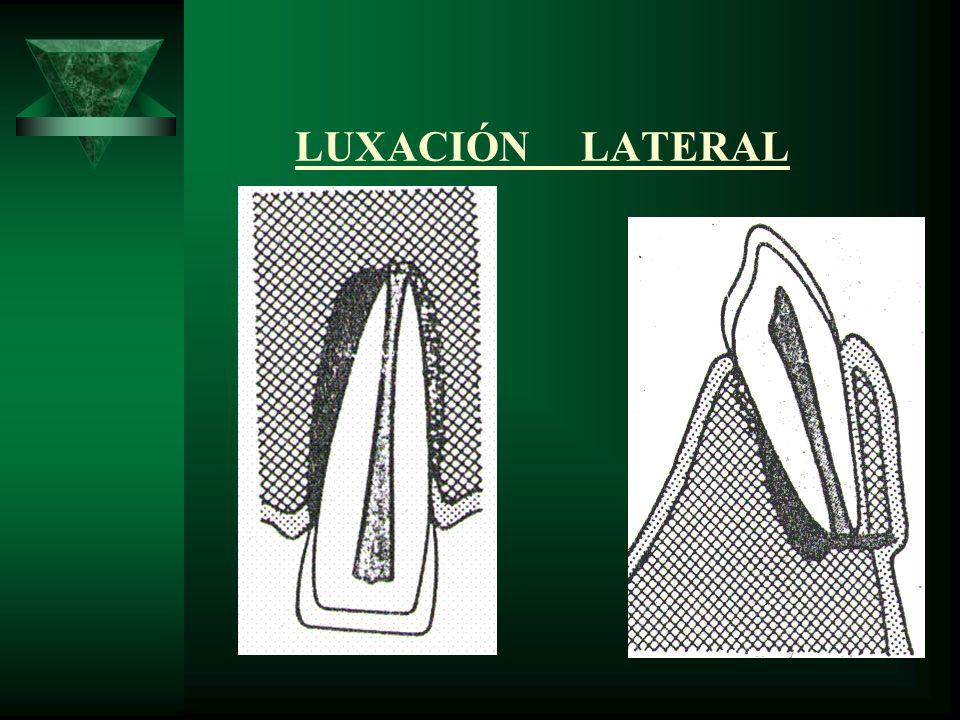 LUXACIÓN LATERAL