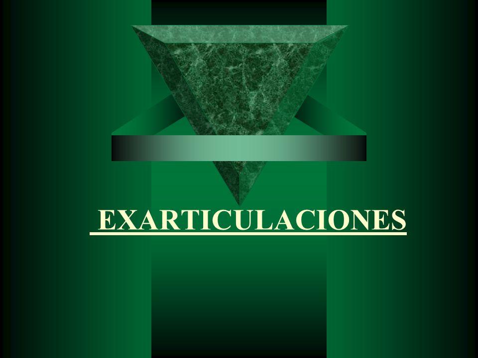 EXARTICULACIONES