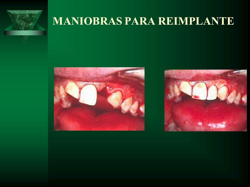 MANIOBRAS PARA REIMPLANTE