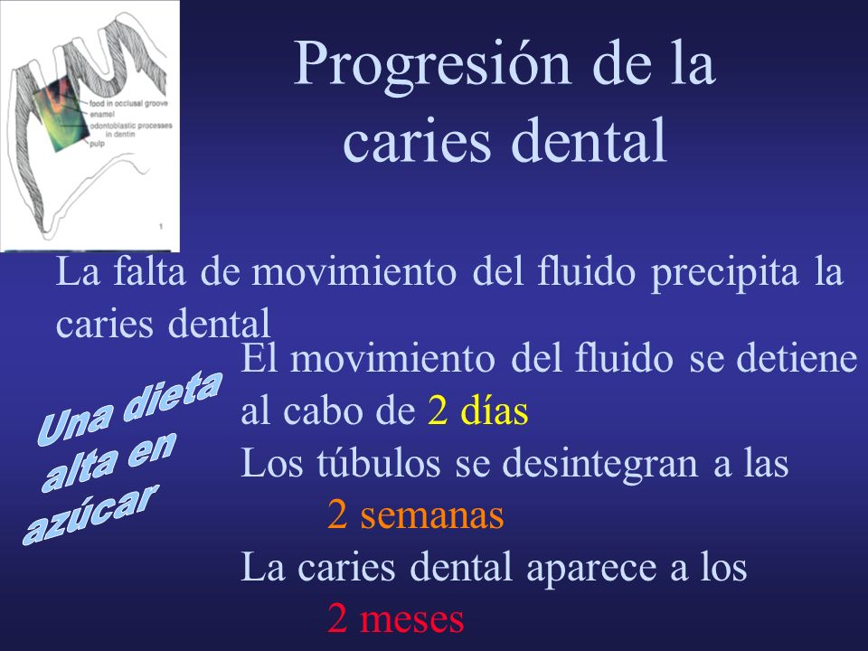 Progresión de la caries dental