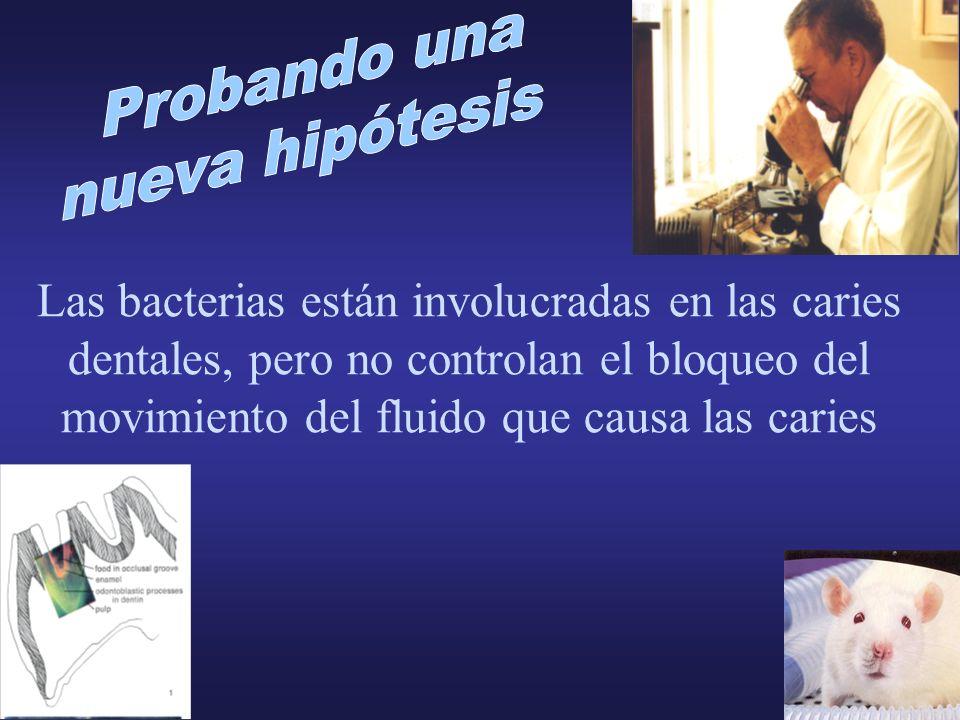 Las bacterias están involucradas en las caries